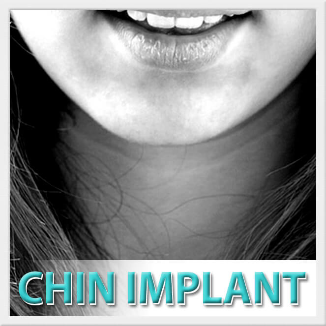mexico cosmetic center, chin implant surgery