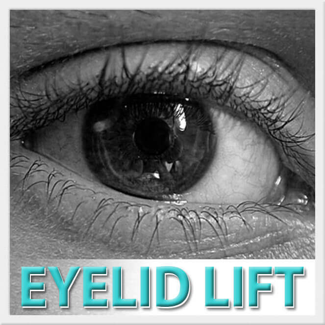 mexico cosmetic center, eyelid lift surgery