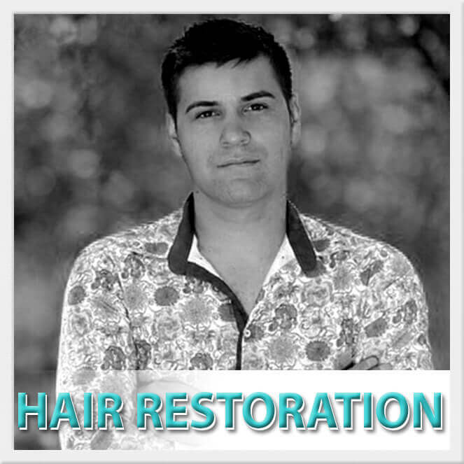 mexico cosmetic center, hair restoration