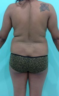 Mexico Cosmetic Center - Brazilian Butt Lift + Liposuction in Mexico Before