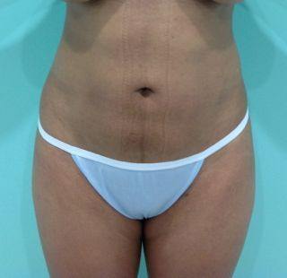 Mexico Cosmetic Center - Brazilian Butt Lift + Liposuction in Mexico After