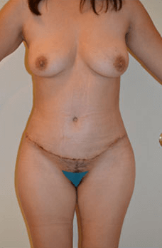 Mexico Cosmetic Center - Abdominoplasty After